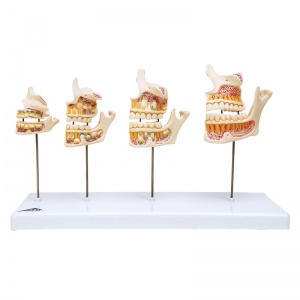 Dentition Development Model