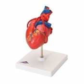Classic Heart Model with Bypass (2-Part)