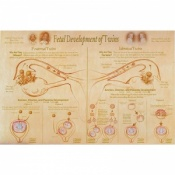 Foetal Development and Presentation of Twins Chart