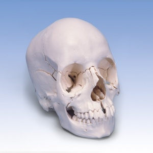 Beauchene Adult Human Skull Model (22-Part)