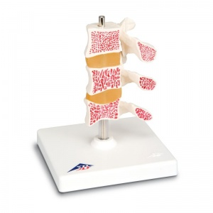 Deluxe Osteoporosis Model
