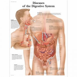 Diseases of the Digestive System Chart