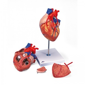 Heart Model with Bypass, 2 Times Life-Size (4-Part)