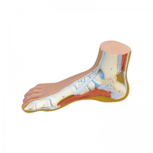 Normal, Hollow and Flat Foot Structure Model