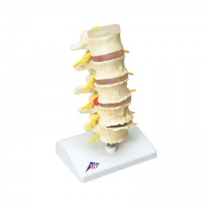 Stages of Disc Prolapse and Vertebral Degeneration Model