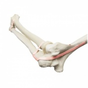 Elbow Orthobone with Latex Band