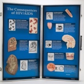 The Consequences of HIV/AIDS 3D Display